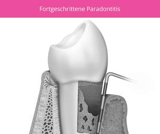 parodontose-fortgeschritten